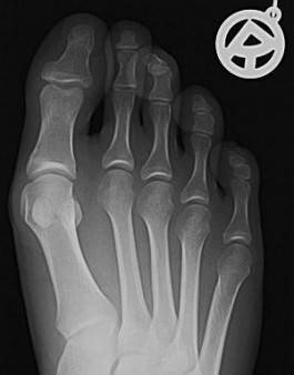 Leichter Hallux valgus vor Operation